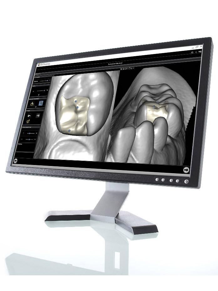 CS Restore Λογισμικό Cad Σχεδιαστικό Πρόγραμμα αποκατάστασης δοντιών
