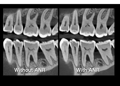 Τρισδιάστατες εικόνες υψηλής ανάλυσης χωρίς οπτικό θόρυβο Advanced noise reduction ANR