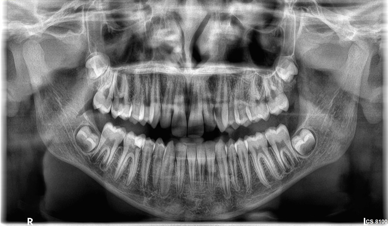 Κλινικές εικόνες cs8100