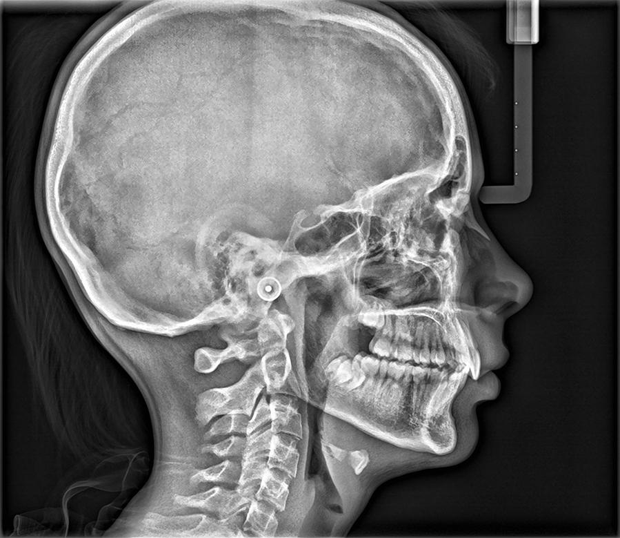Κλινικές εικόνες για το cs8100sc