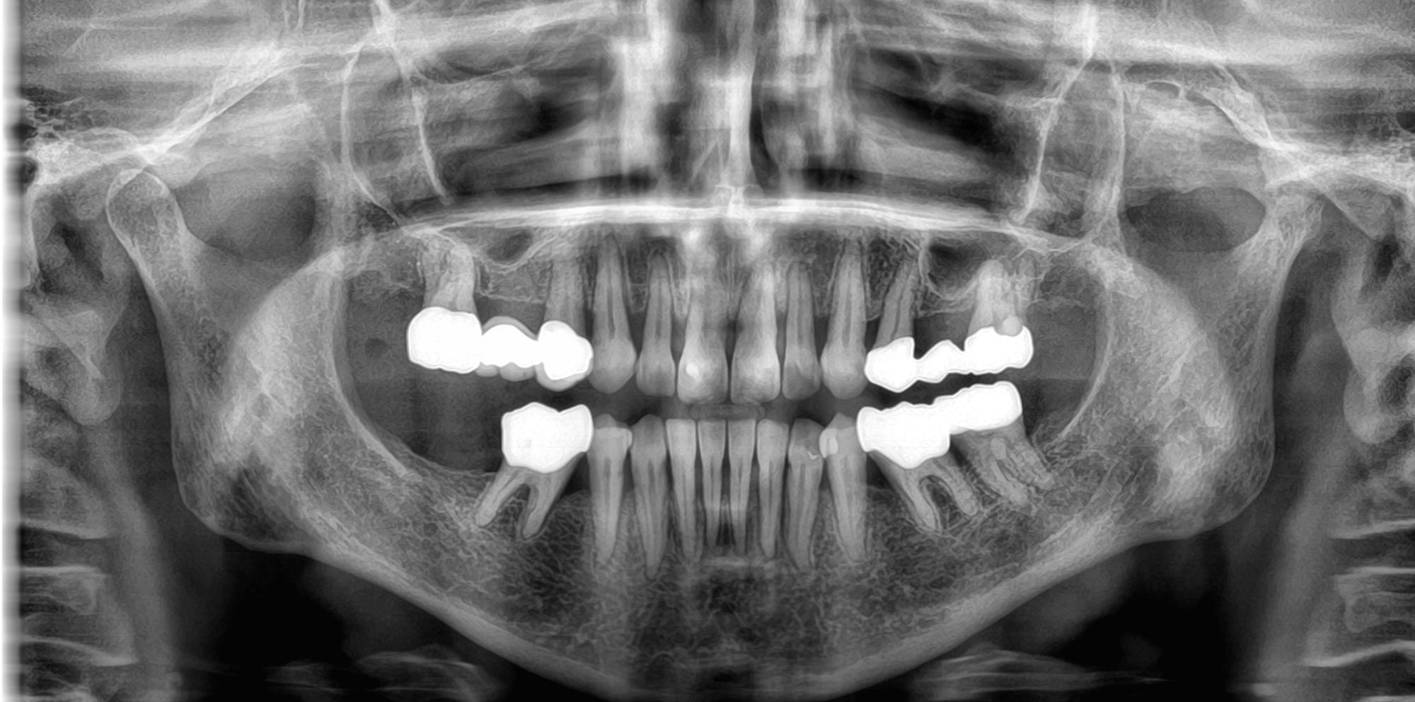 Κλινικές εικόνες CS 8200 3D